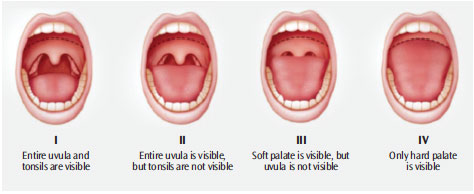 Mouth Types